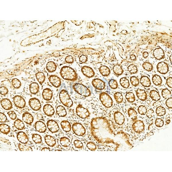 AF3318 Phospho-JNK1/2/3 (Thr183+Tyr185) Antibody IHC Human normal tissues adjacent to colorectal cancer